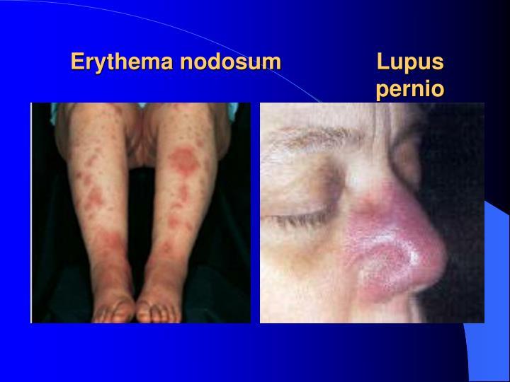 Erythema nodosumLupus      pernio