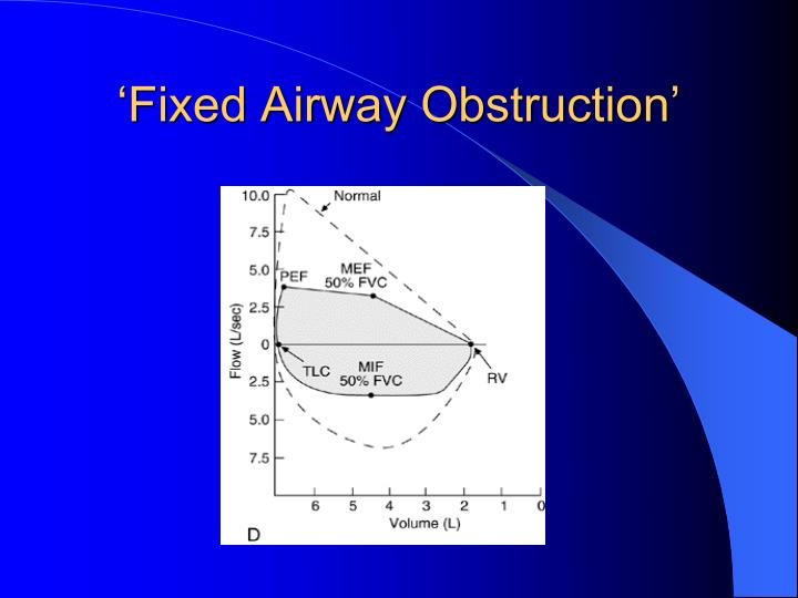 'Fixed Airway Obstruction'