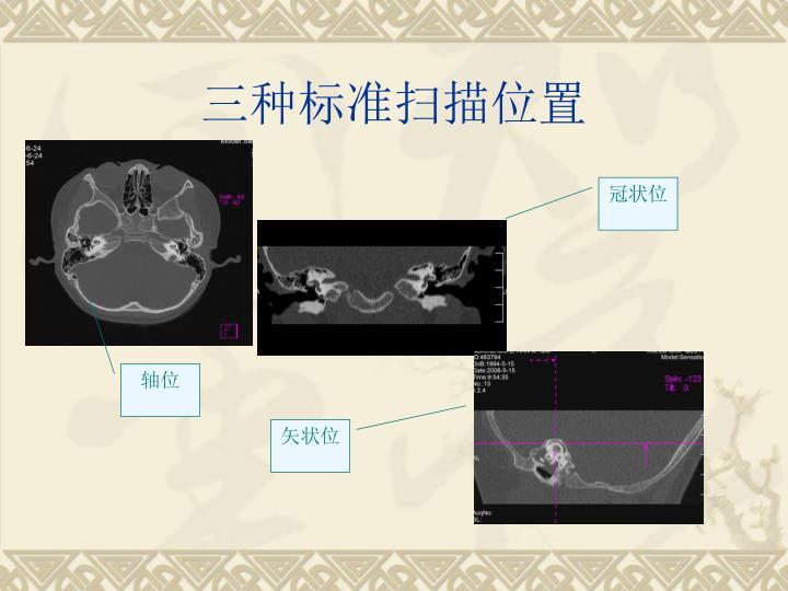 三种标准扫描位置