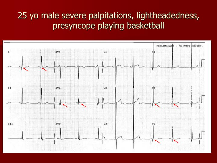 25 yo male severe palpitations, lightheadedness, presyncope playing basketball