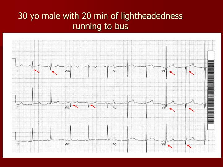 30 yo male with 20 min of lightheadedness running to bus