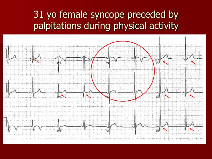 31 yo female syncope preceded by palpitations during physical activity