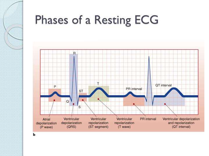 Phases of a Resting ECG