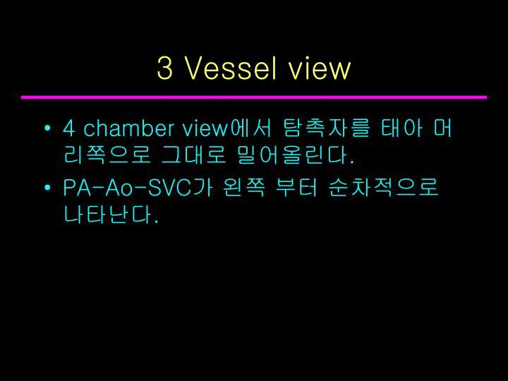 3 Vessel view