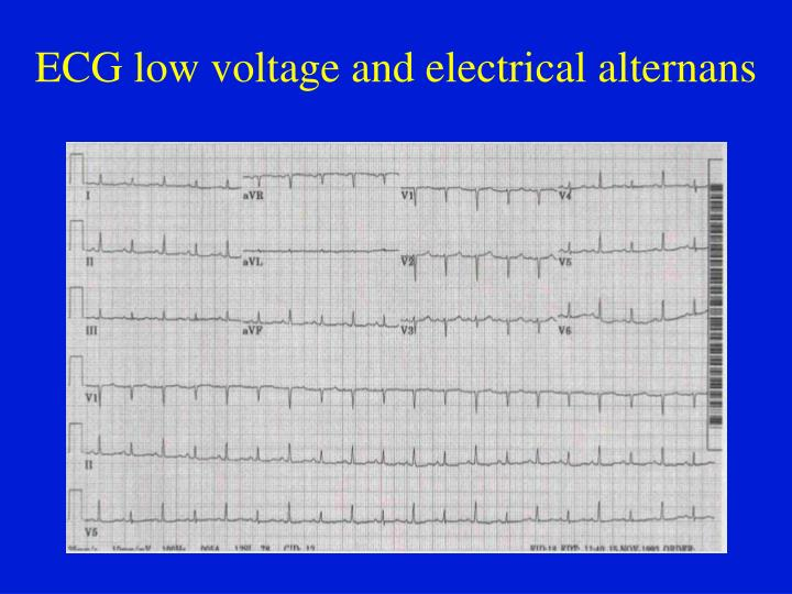 ECG low voltage and electrical alternans