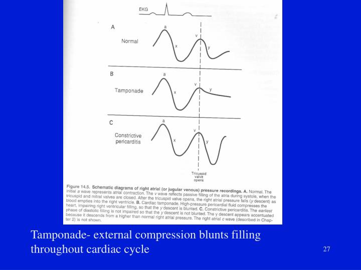 Tamponade- external compression blunts filling throughout cardiac cycle