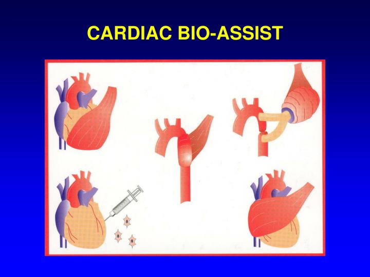 CARDIAC BIO-ASSIST