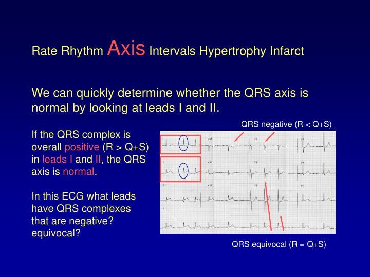 QRS negative (R < Q+S)