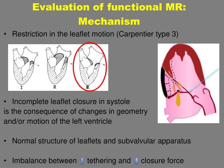 Evaluation of functional MR: Mechanism