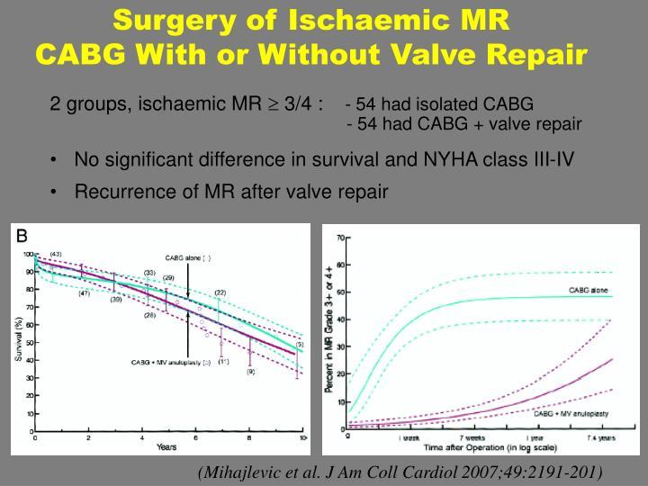 Surgery of Ischaemic MR