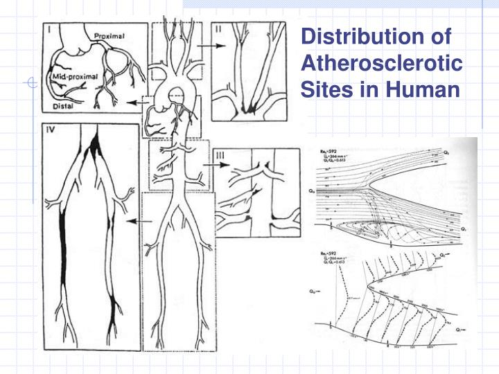 Distribution of Atherosclerotic Sites in Human