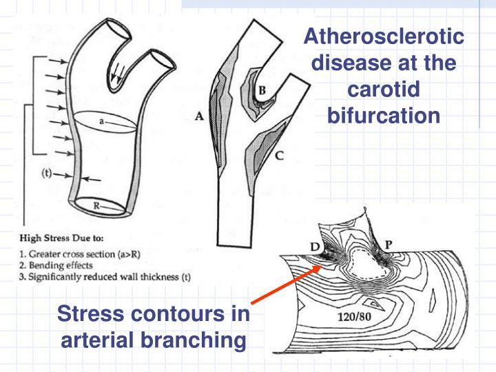 Atherosclerotic disease at the carotid bifurcation