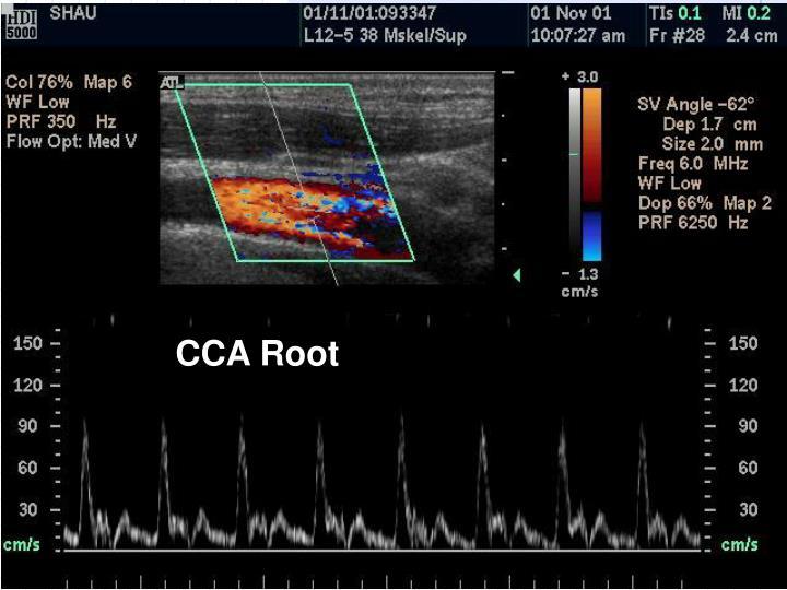 CCA Root