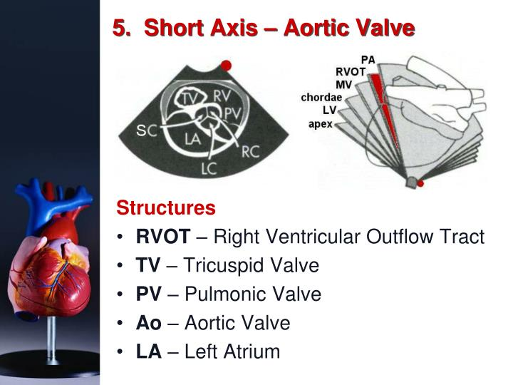 5.  Short Axis – Aortic Valve
