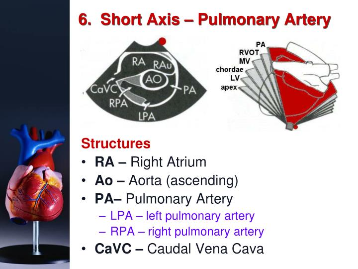 6.  Short Axis – Pulmonary Artery