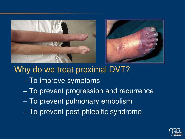 Why do we treat proximal DVT?