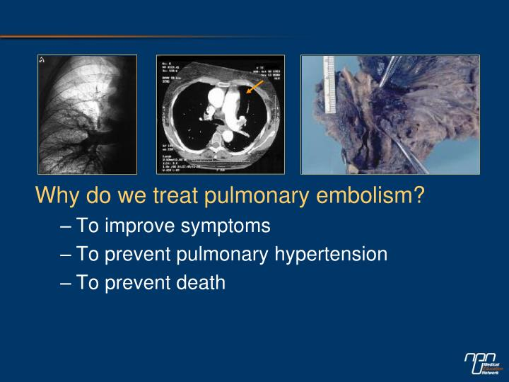 Why do we treat pulmonary embolism?
