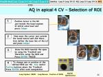 aq in apical 4 cv selection of roi