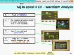 aq in apical 4 cv waveform analysis