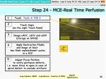 step 24 mce real time perfusion