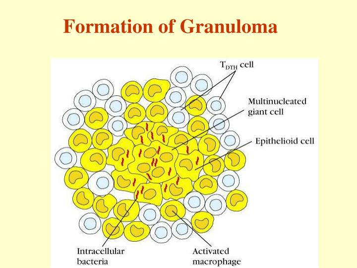 Formation of Granuloma