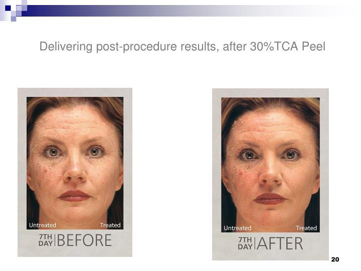Delivering post-procedure results, after 30%TCA Peel