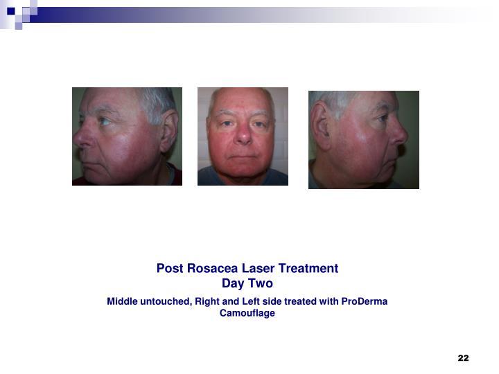Post Rosacea Laser Treatment
