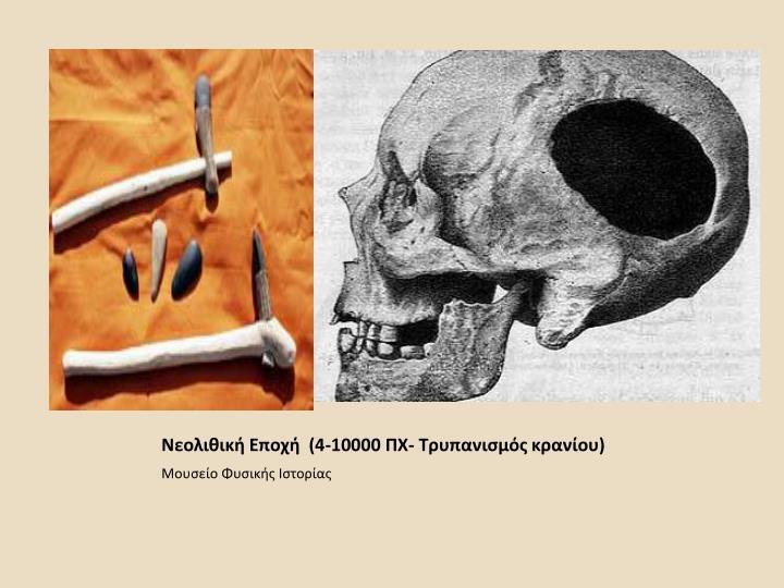 Νεολιθική Εποχή  (4-10000 ΠΧ- Τρυπανισμός κρανίου)