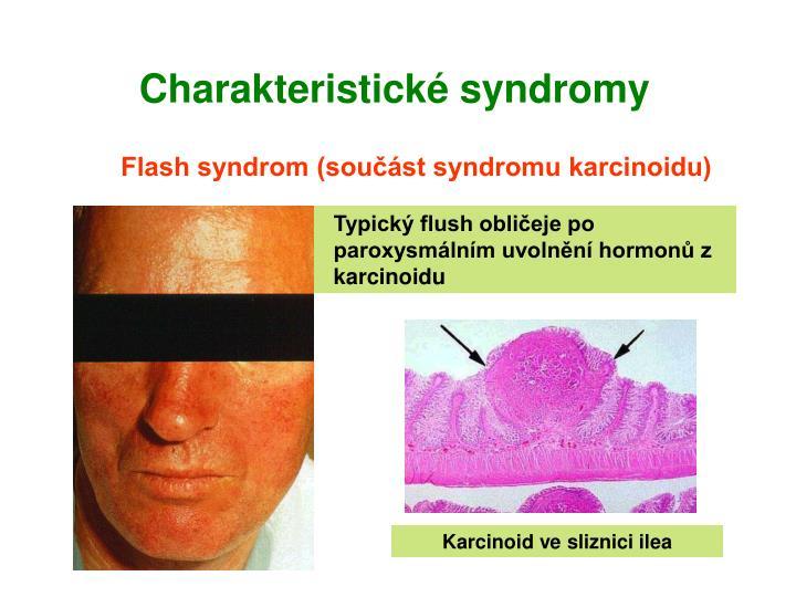 Charakteristické syndromy