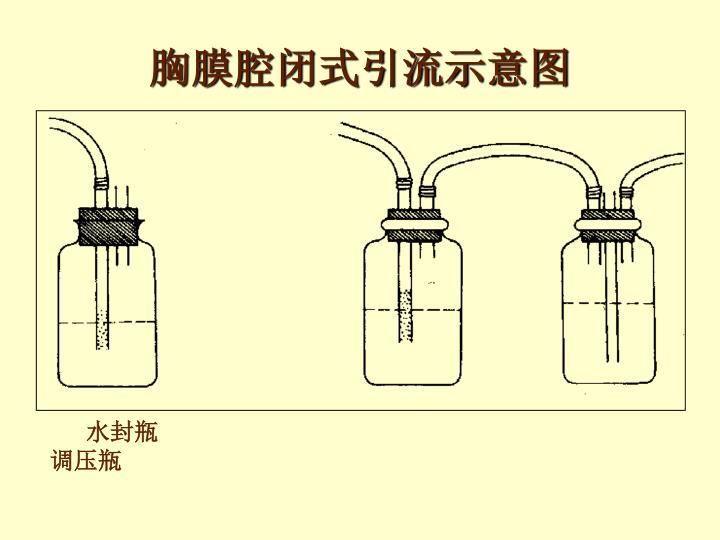 胸膜腔闭式引流示意图