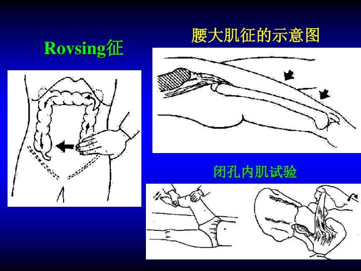 Rovsing