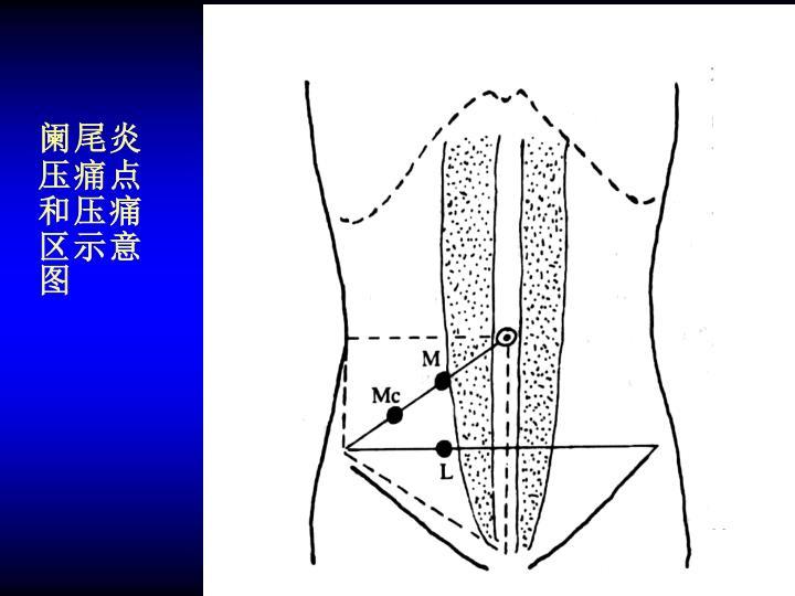 阑尾炎压痛点和压痛区示意图