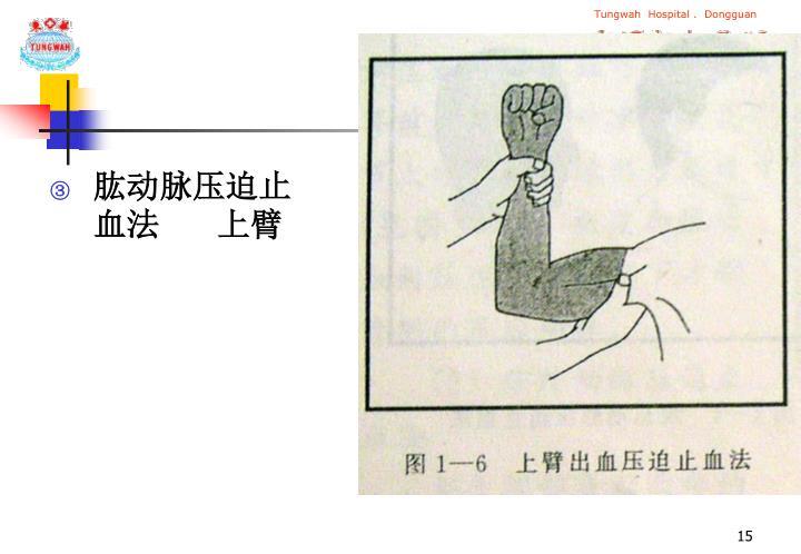 肱动脉压迫止血法      上臂