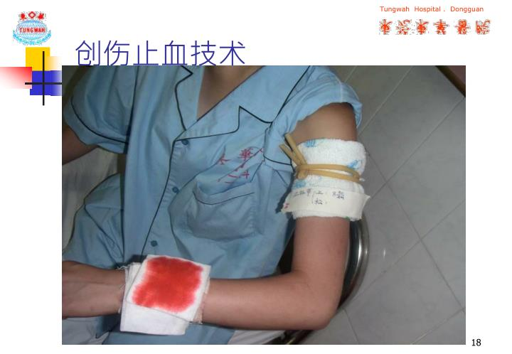 创伤止血技术