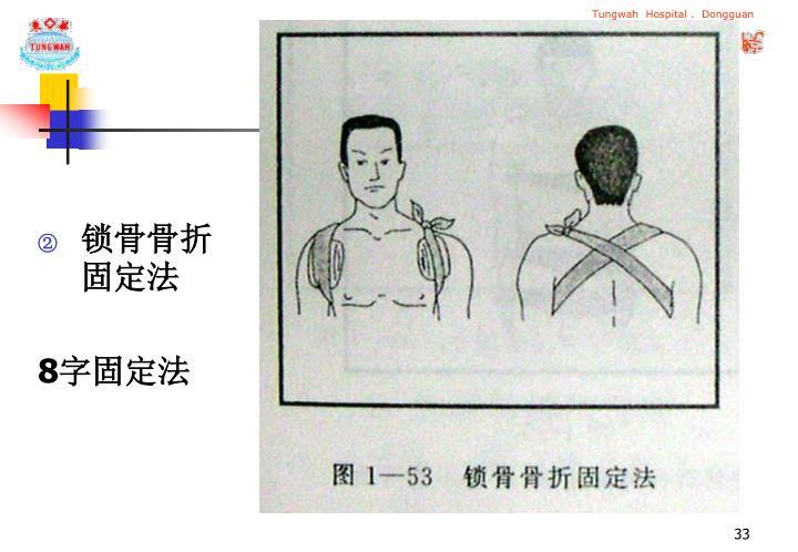 锁骨骨折固定法