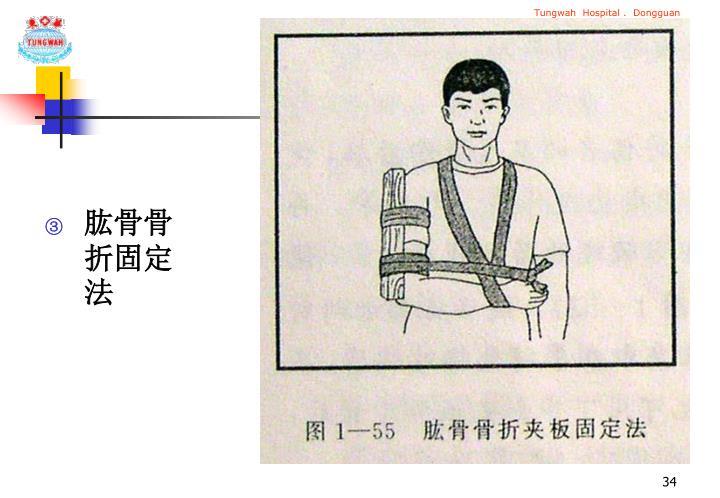 肱骨骨折固定法