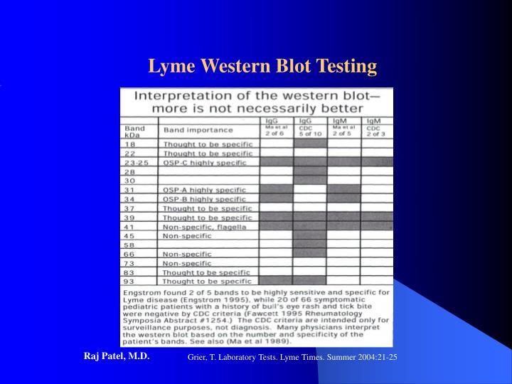 Lyme Western Blot Testing