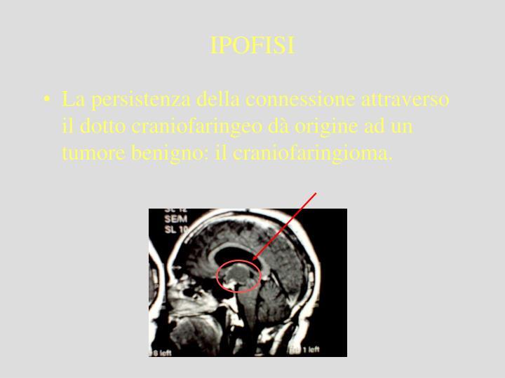 La persistenza della connessione attraverso il dotto craniofaringeo dà origine ad un tumore benigno: il craniofaringioma.