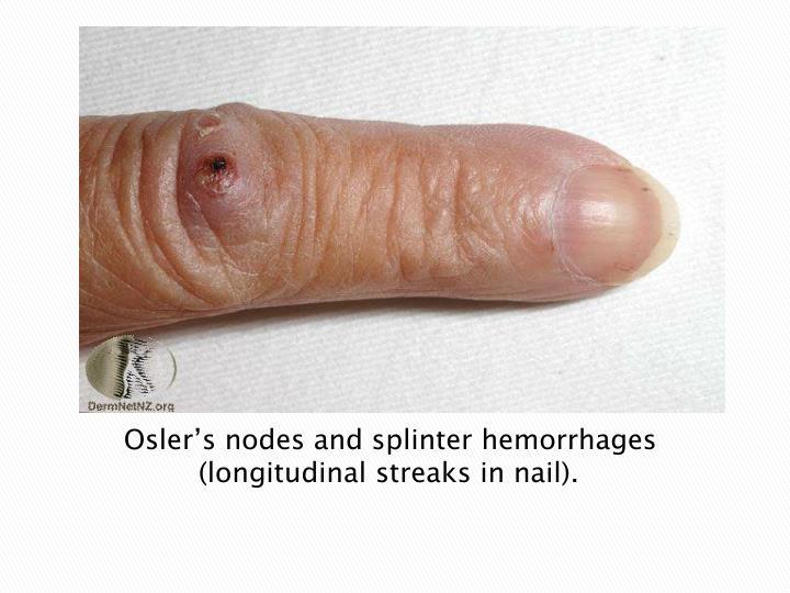 Osler's nodes and splinter hemorrhages (longitudinal streaks in nail).