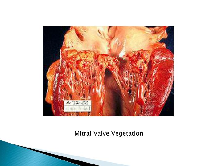 Mitral Valve Vegetation