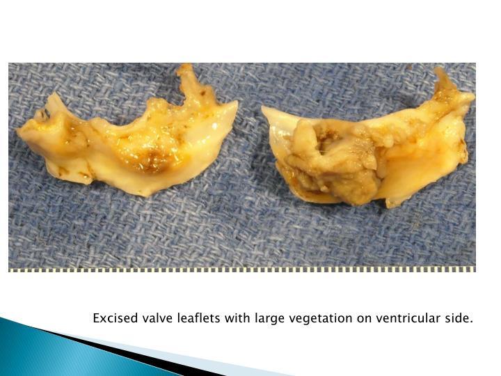 Excised valve leaflets with large vegetation on ventricular side.