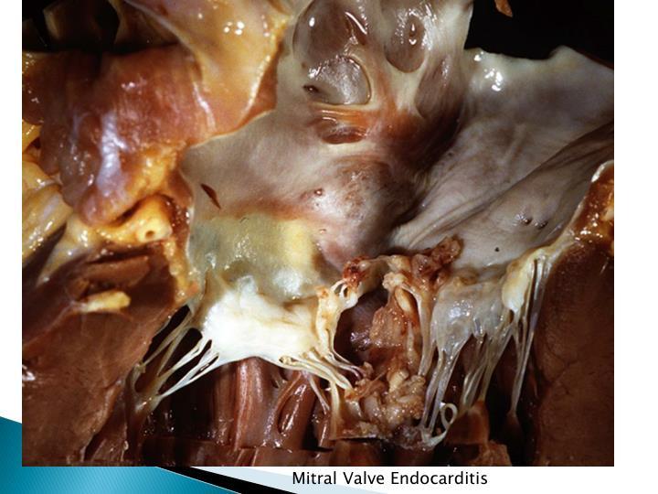 Mitral Valve Endocarditis