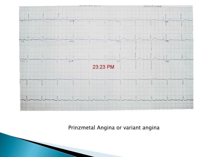 Prinzmetal Angina or variant angina