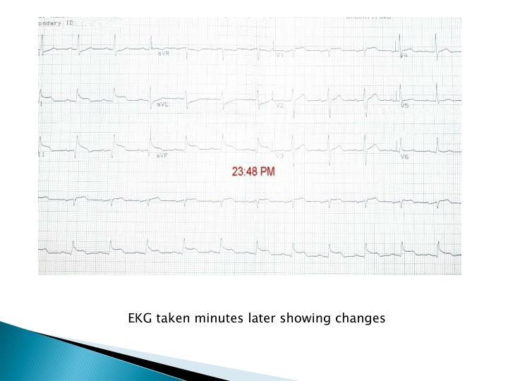 EKG taken minutes later showing changes