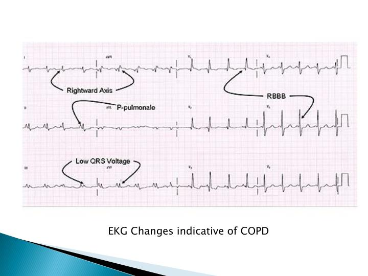 EKG Changes indicative of COPD