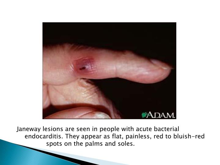 Janeway lesions are seen in people with acute bacterial