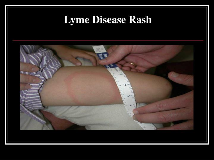 Lyme Disease Rash