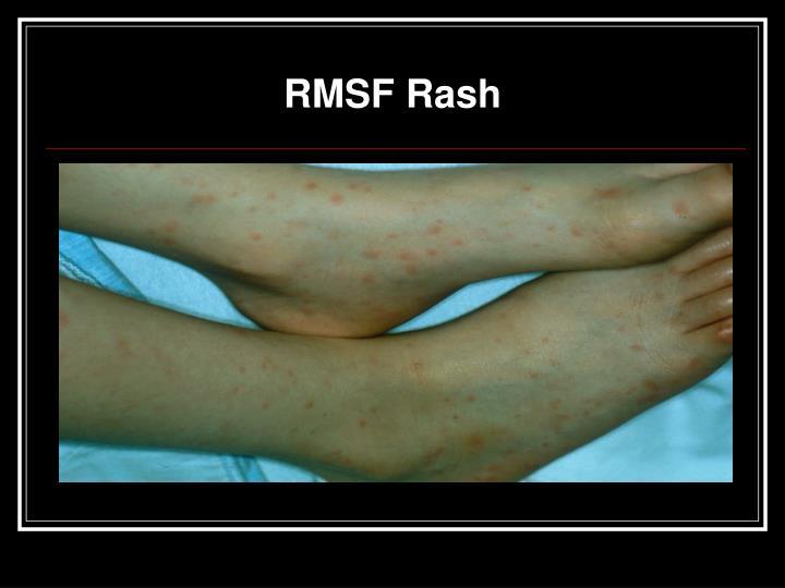 RMSF Rash