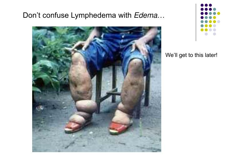 Don't confuse Lymphedema with