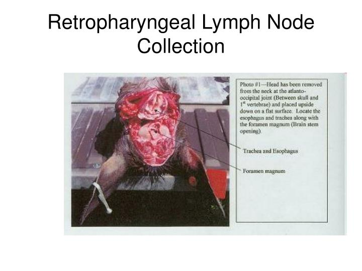 Retropharyngeal Lymph Node Collection